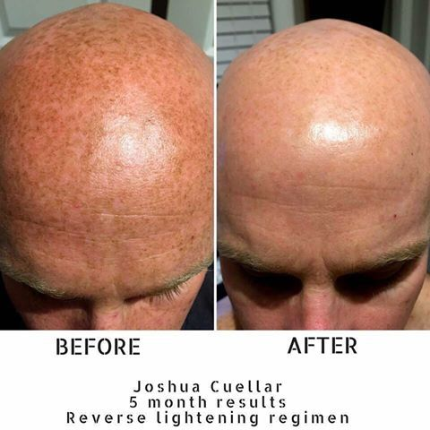 here are before and after photos of actual rodan and fields product users many achieved noticable results within weeks of using the products
